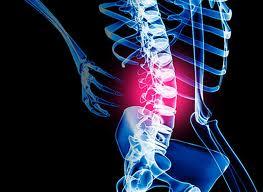 bolest-spodnej-casti-chrbtice