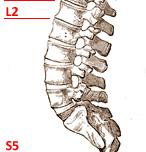 Poranenie stavcov chrbtice L2 - S5