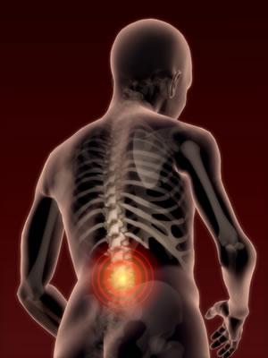 Posilňovanie hlbokého stabilizačného systému chrbtice