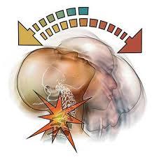 zranenie krcnej chrbtice
