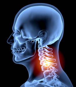bolesť krčnej chrbtice