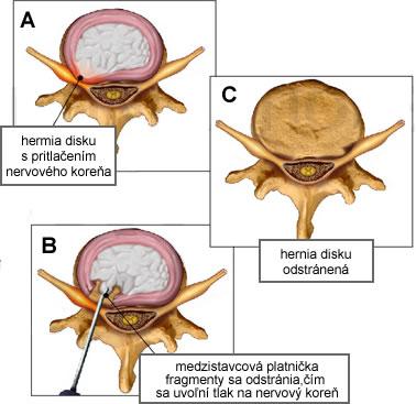 diskektomia